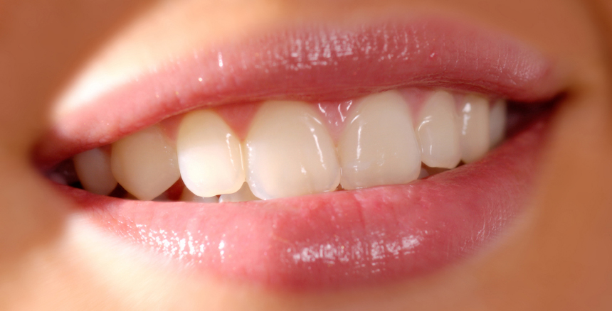 Teeth whitening with pearly teeth whitening  no sensitivity