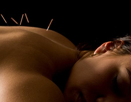 Treatwell guide: Acupuncture Awareness Week