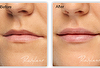 Summer Glow: Dermal Fillers (1ml) with Vitamin & Antioxidant