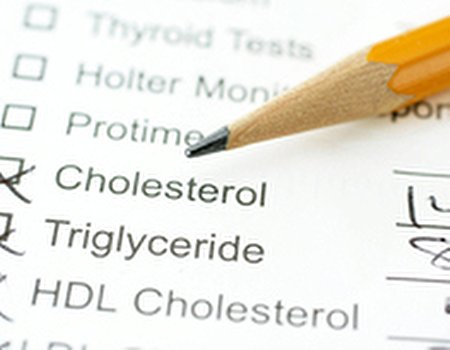 What is your take on cholesterol?