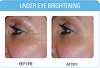 Under Eye Lines Puffiness & Dark Circles