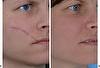 BDR - Scar treatment